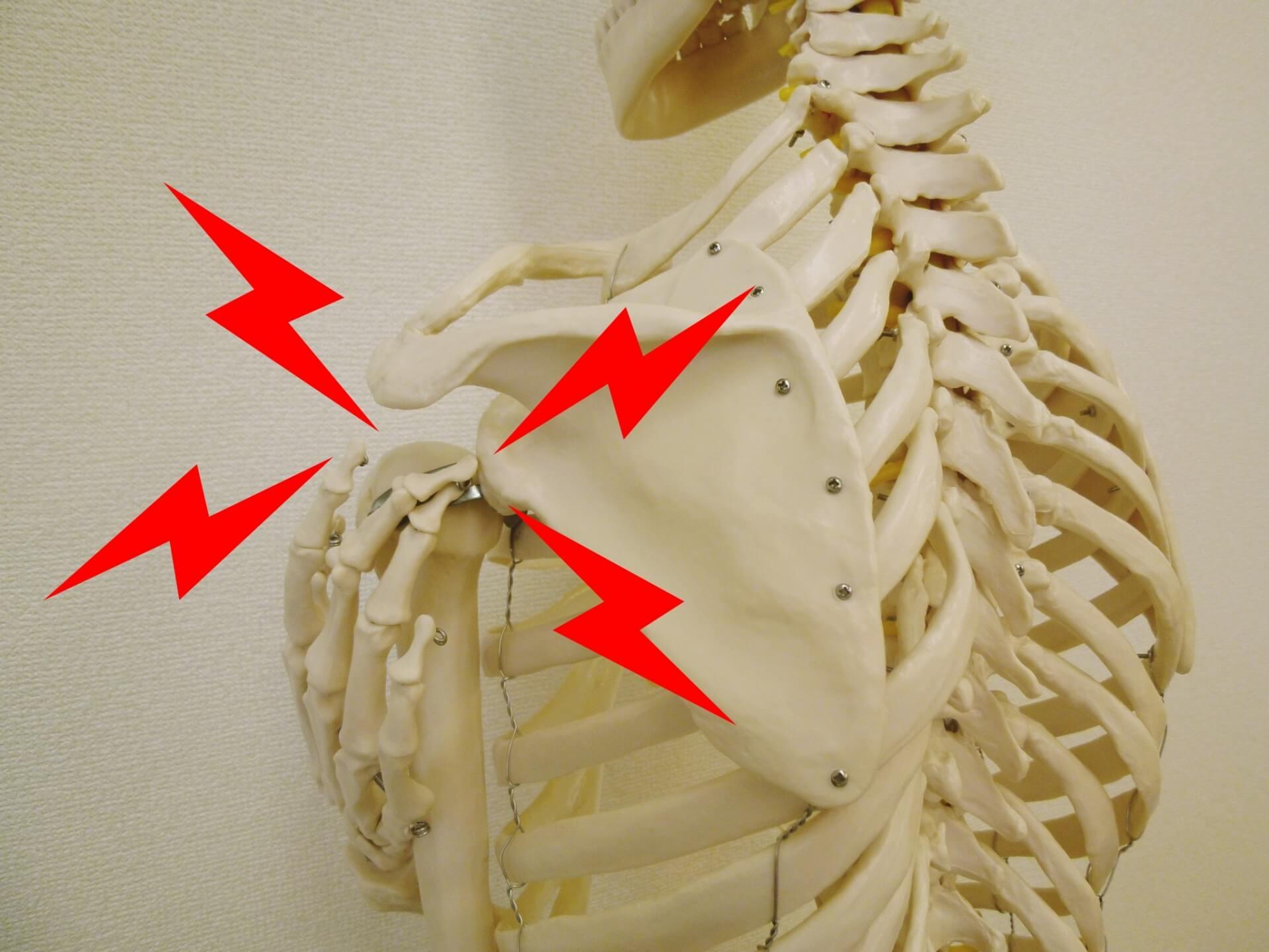 肩 甲骨 はがし 器具